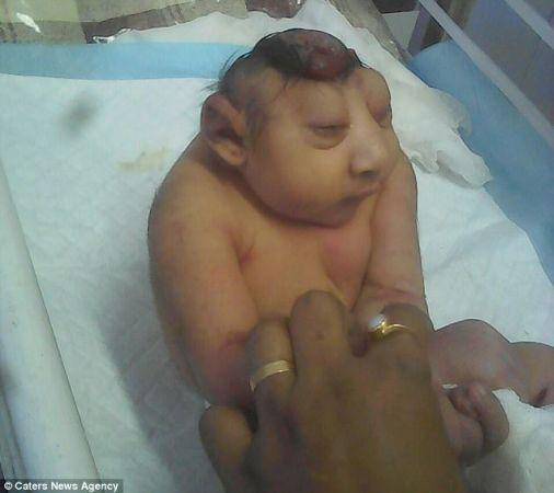 В Индии родился ребенок с мозгом наружу